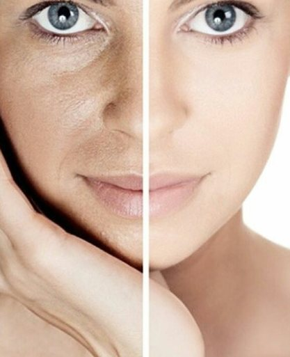Image result for dehydrated skin